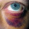Diferenciálna diagnostika zlomenín tvárových kostí